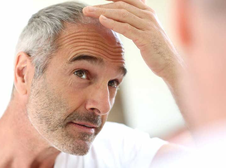 Treatment to prevent hair loss and thinning hair